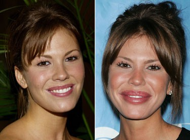 nikki-cox-before-and-after-plastic-surgery-photos.jpg